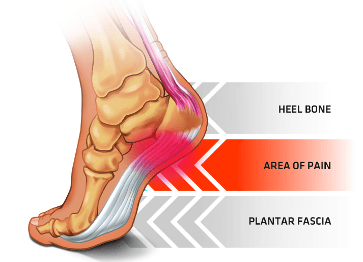 Flat Shoes Calf Pain